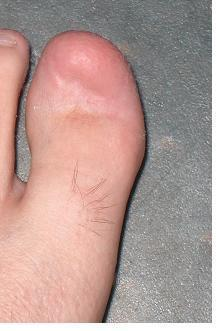 partial toenail removal with Doc 35% for PAIN!!! - Page 2 ...