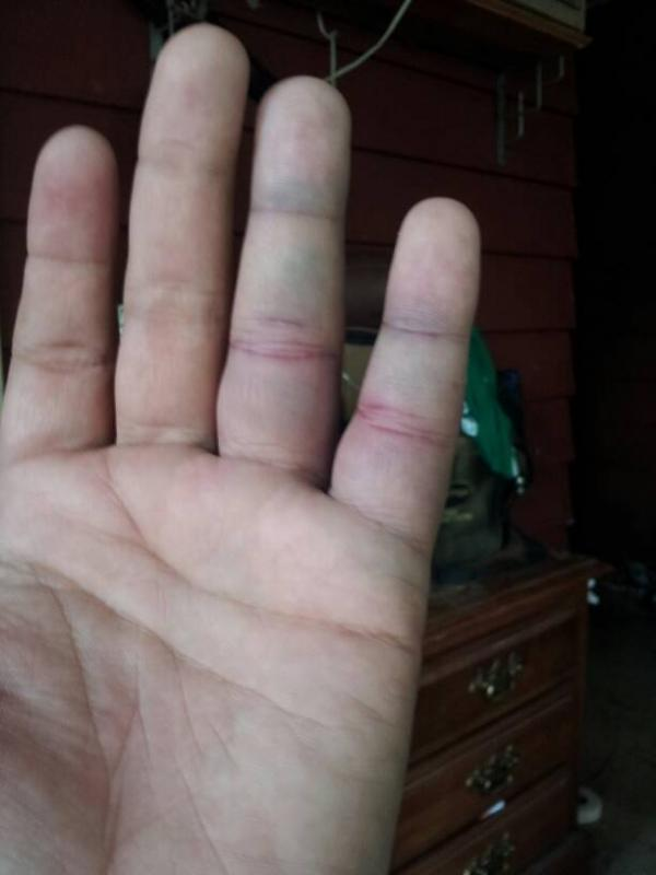 How long should a jammed finger hurt? - Pirate4x4.Com : 4x4 and Off ...
